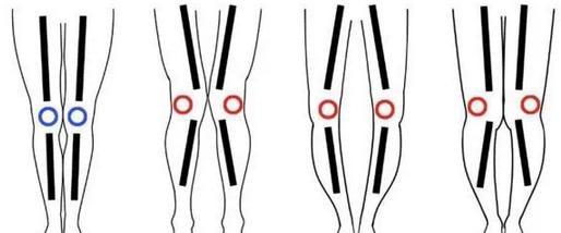 腿又粗又弯怎么减?女生瘦腿的最快最有效方法-轻博客