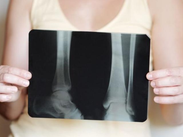 燕麥會導致骨質疏松嗎?醫生:若想要養好骨,2種食物盡量少吃