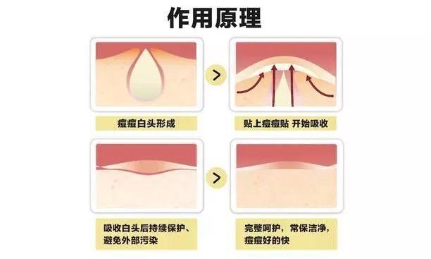 醫用敷料貼痘痘貼詳解(圖6)