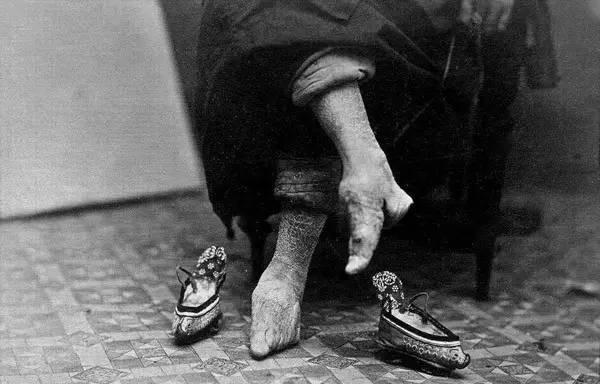裹脚是从什么时候开始的?