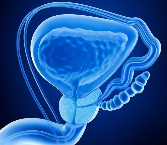 前列腺炎是成年男性常见病,那么前列腺钙化是