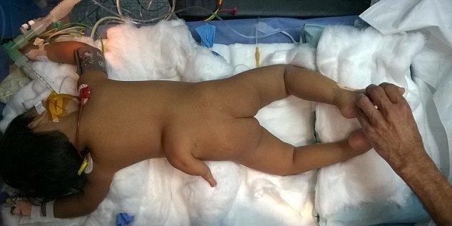 印度某女幼婴儿出世时居然长了三大条腿,最终医院医生手术成功切除[多图]