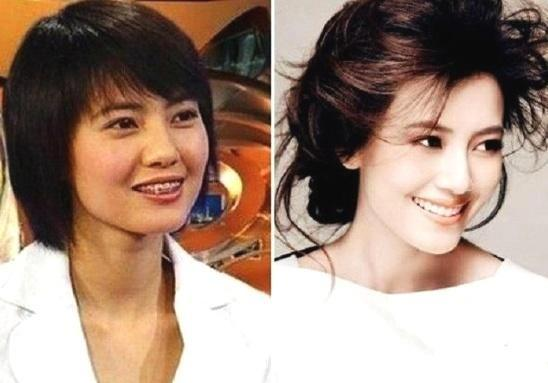 整牙之后有多美?看了这些女星,终于知道牙齿整洁的重要性了!
